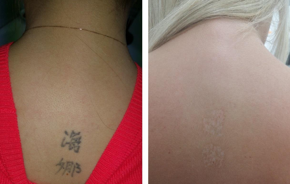 Tattoo Removal Cardiff | safe and effective tattoo removal